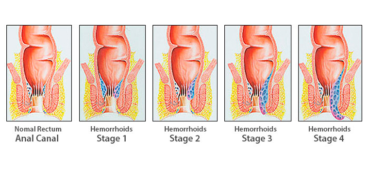 Emorroidi e trattamento dopo la consegna